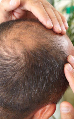 Un'altra finalità di questa tecnica è combattere la caduta dei capelli e favorire il rinfoltimento. Per questo può essere sfruttata anche dagli uomini che spesso si trovano ad avere a che fare con problemi di alopecia.